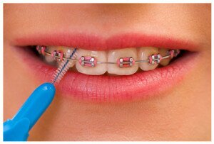 cleaning-braces