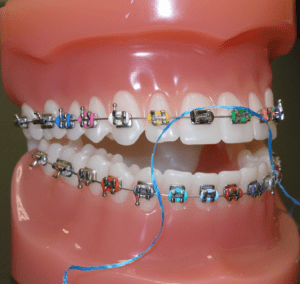 cleaning braces 4